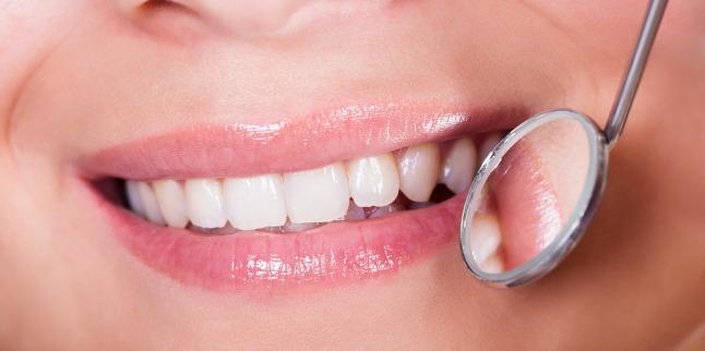 Cauze ale modificarii de culoare a dintilor