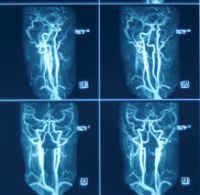 Ecografia Doppler vasculara