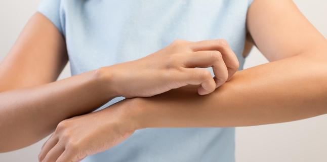 Factori care influenteaza aparitia eczemelor
