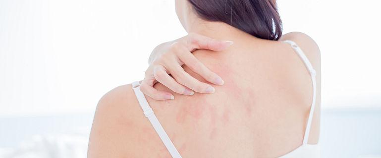 eczema provoacă pierderea în greutate