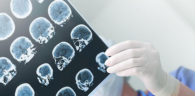 Ce ar trebui sa stii despre epilepsia dobandita in copilarie