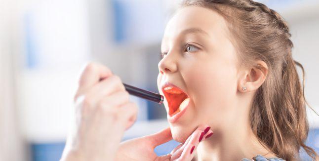 Ce este si cum se manifesta faringita streptococica la copii?