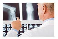 Cum sunt diagnosticate si tratate fracturile osoase