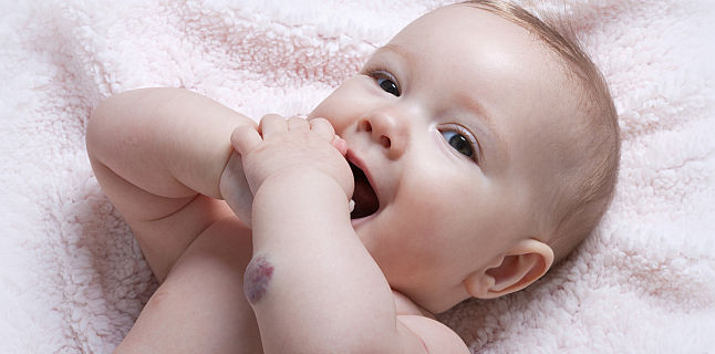 Ce trebuie sa stim despre hemangiomul infantil?
