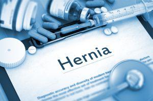 Hernia inghinala - un fenomen tot mai des intalnit