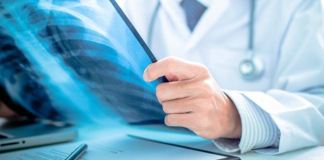 Hipertensiunea pulmonara - cauze, simptome, tratament