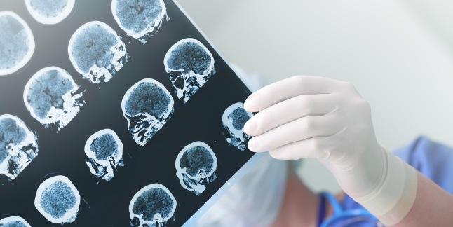 pierderea inexplicabilă a creierului