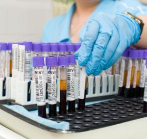 Caracteristicile bolii SIDA si ale persoanelor seropozitive