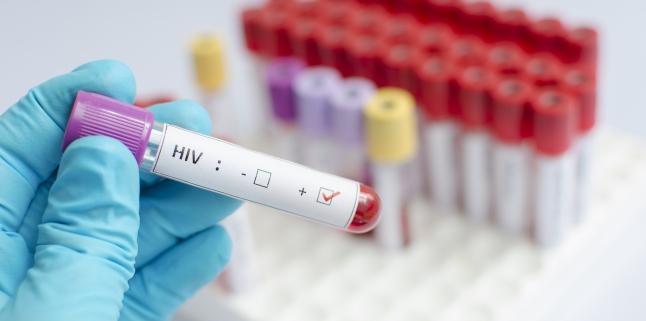 Simptomele infectiei cu HIV la femei