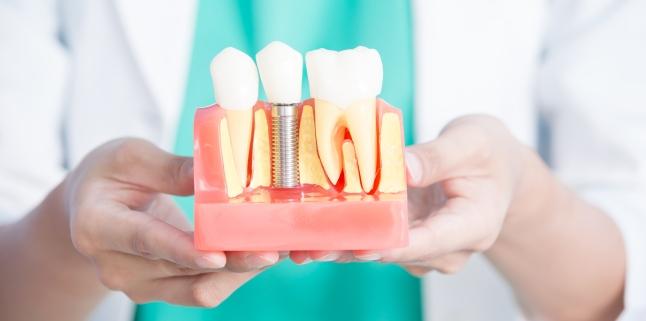 Implanturile dentare - tipuri, avantaje si riscuri