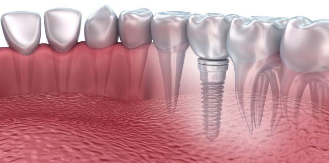 Implanturile Dentare din Zirconiu vs Implanturile din Titan