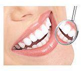 Insertia implantului imediat dupa extractia dentara- varianta moderna de tratament