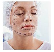 Implanturi ale obrajilor, buzelor sau barbiei