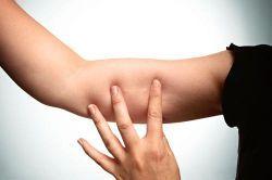 Implantul contraceptiv