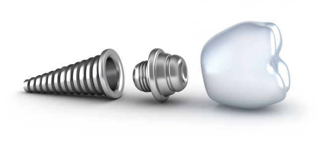 Ce trebuie sa stiti despre implanturile dentare