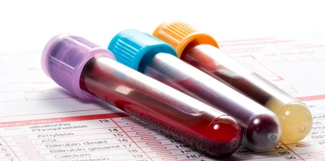 Imunoglobulinele