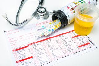 7 mituri despre infectiile urinare