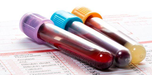 Leucemia limfatica cronica