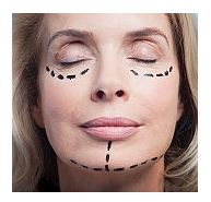 Liftingul facial (ritidectomie)