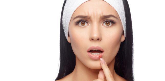Ce pot indica mancarimile de la nivelul gurii?