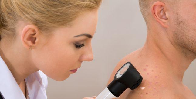 Cancerul de piele: melanomul malign
