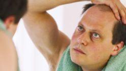 Mituri despre caderea parului la barbati