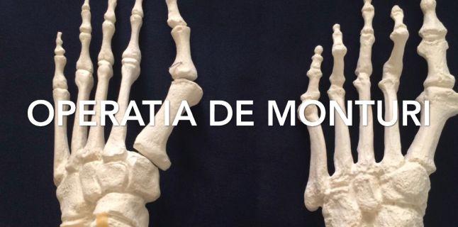 durere în articulațiile picioarelor după operație
