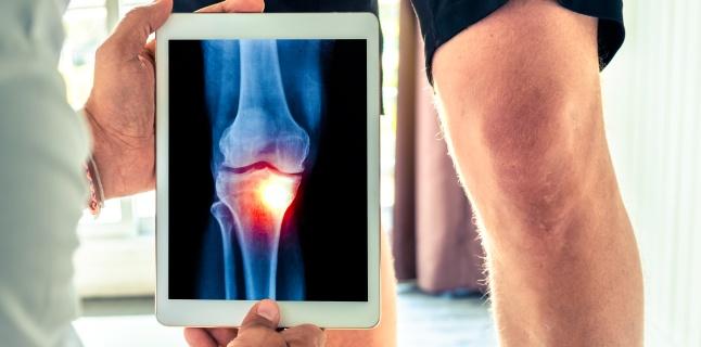 Tot ce trebuie stiut despre osteoartrita tricompartimentala