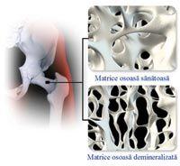 Tratamentul oaselor fragile la ora actuala. Osteoporoza