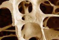 Osteoporoza si sanatatea oaselor