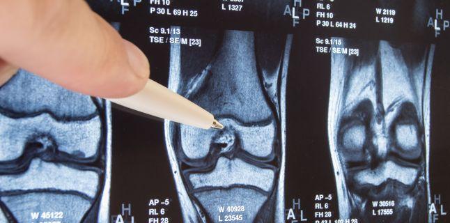 Semnele care va anunta ca suferiti de osteoporoza