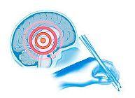 Cum afecteaza Sindromul Parkinson organismul
