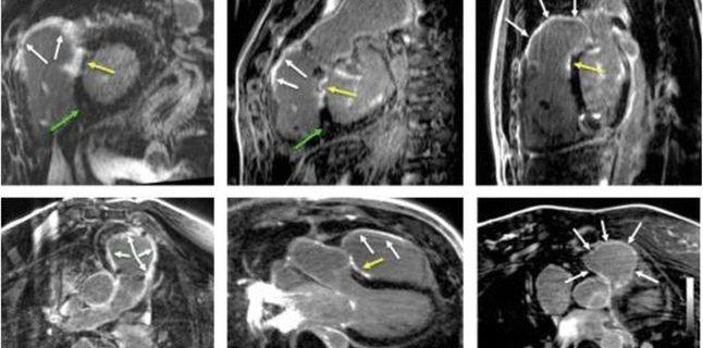 Cardio-RM-ul, cea mai complexa investigatie dedicata inimii si aplicatiile sale pentru pacientii din Romania