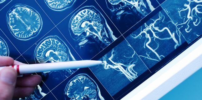 Afectiuni care pot provoca pierderi de memorie