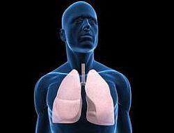 Histoplasmoza pulmonara