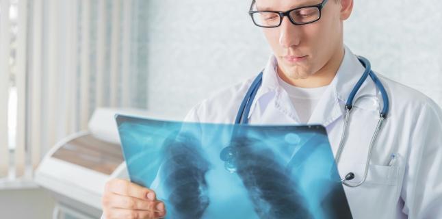 Pneumonia pneumococica - manifestari clinice, evolutie, complicatii, tratament