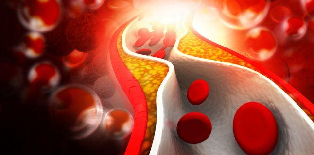 Colesterol marit: cum il mentii la valori normale