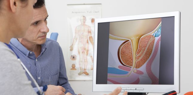 Prostata marita sau adenomul de prostata
