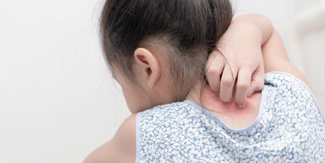 Gestionarea episoadelor de psoriazis la copii