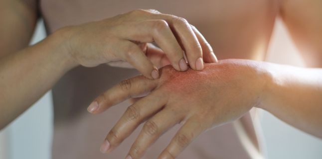 Psoriazisul - cauze, simptome, tratament