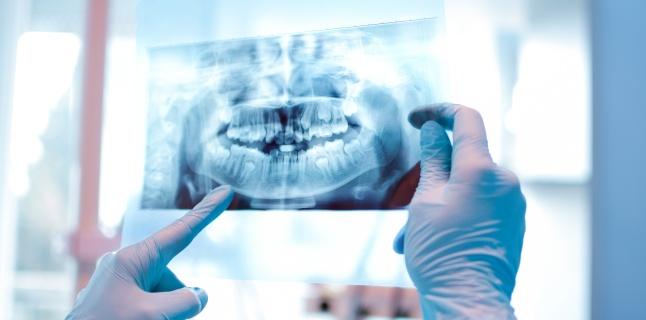 Radiografia dentara poate fi periculoasa?