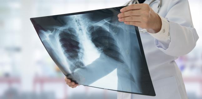 Tuberculoza (TBC): simptome si tratament