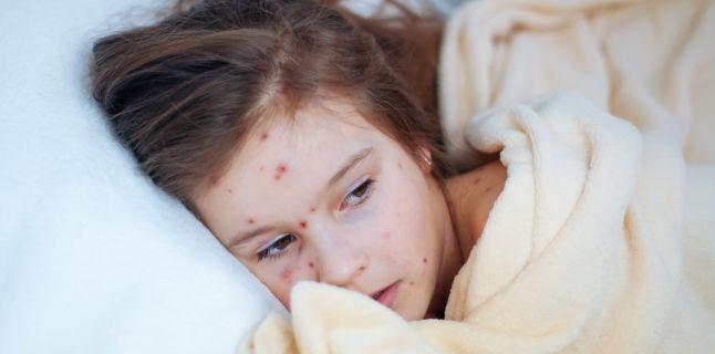 Rubeola (pojarul german) - cauze, simptome, tratament