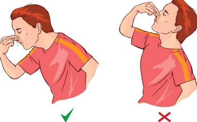 Cele mai utile metode prin care sangerarile nazale pot fi stopate