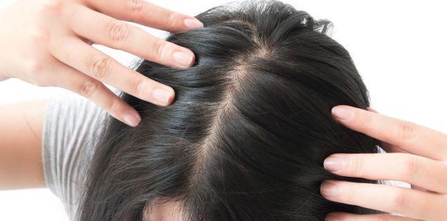 Motivele furnicaturilor de la nivelul scalpului