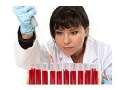 Siclemia sau anemia cu celule in secera