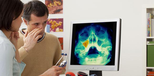 Complicatii care pot aparea prin netratarea sinuzitei