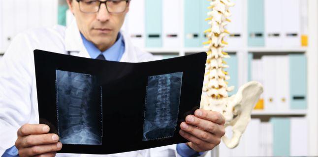 Stenoza spinala: cauze, simptome, tratament