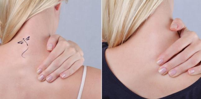 Metode de indepartare a tatuajelor