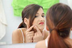 Proceduri cosmetice: Ingrijirea tenului acneic